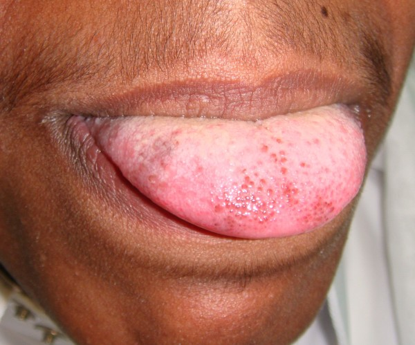 Is black hairy tongue contageous