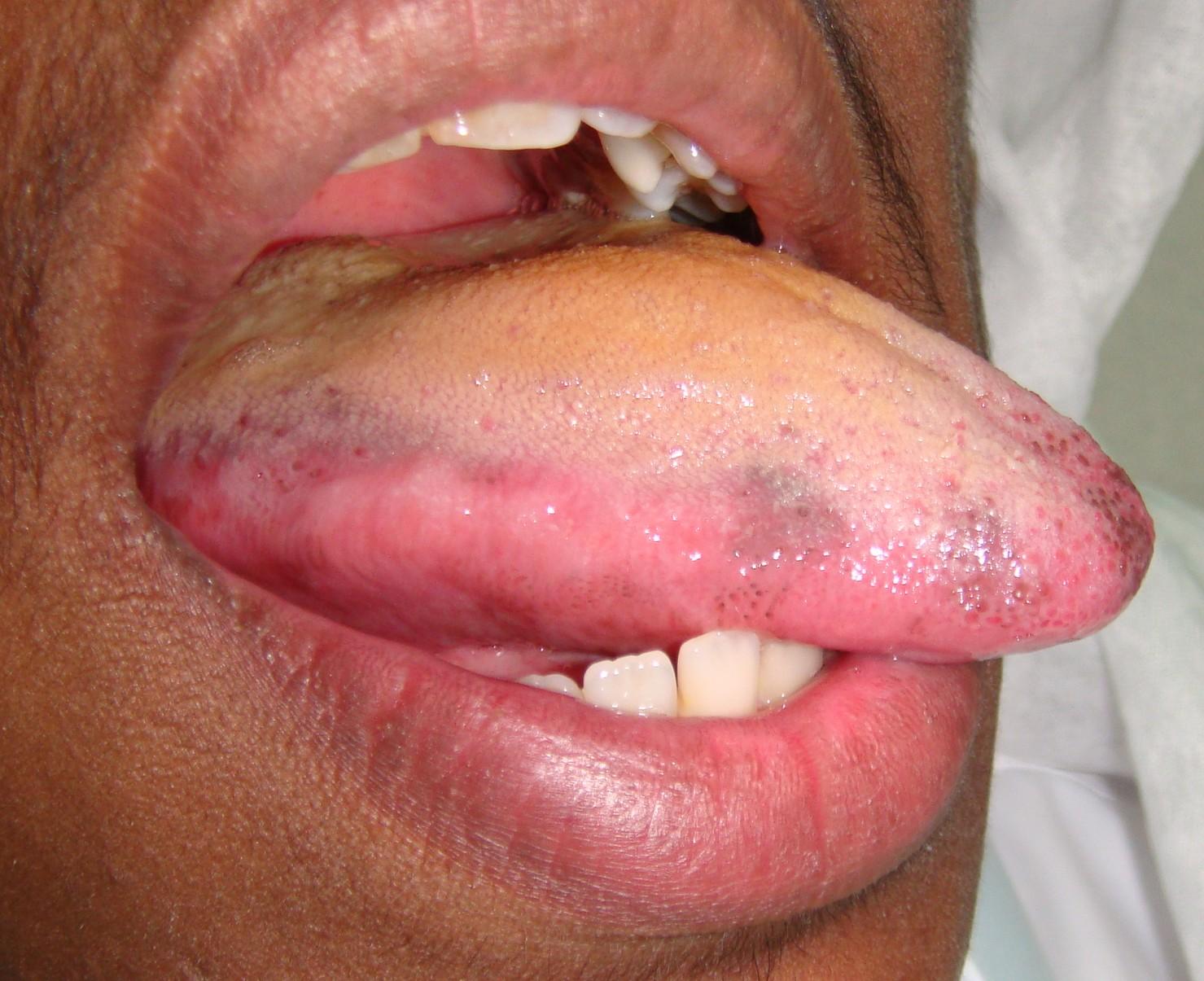 Black Spots On Tongue