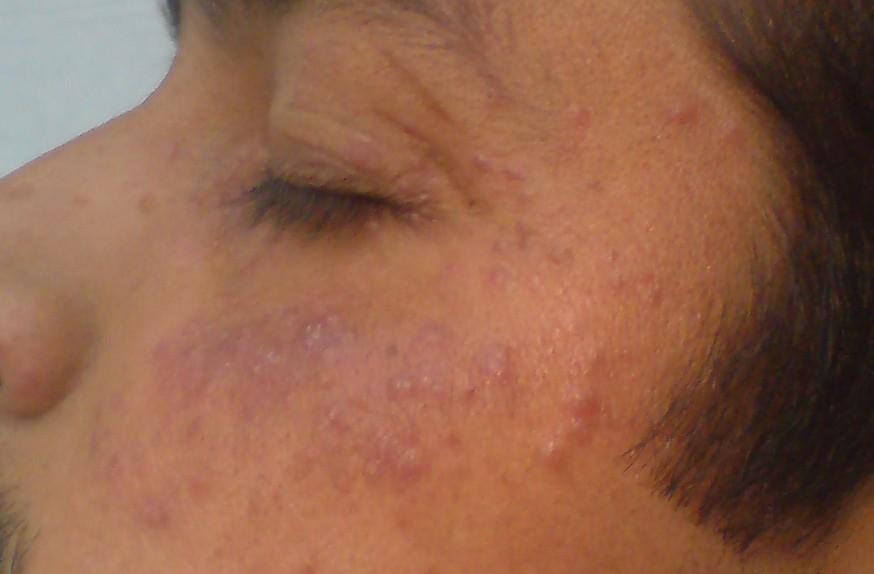 Itching rash in adults